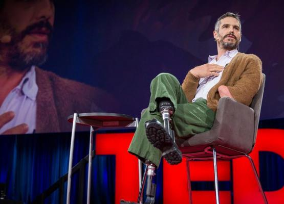 Man with amputations on stage doing Ted Talk
